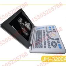 供应全数字化笔记本式B型超声诊断仪批发