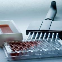IL-6大鼠白介素6试剂盒批发