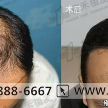 供应种的头发护理麻烦么?