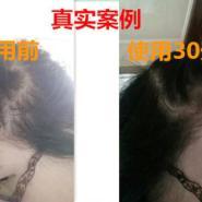 索芙特6级防脱发防脱止脱洗发水图片