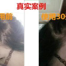 供应 快速特效瑶元堂     生发剂洗发护发增发密发精发液正品